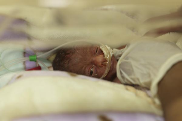 A newborn baby rests in an incubator